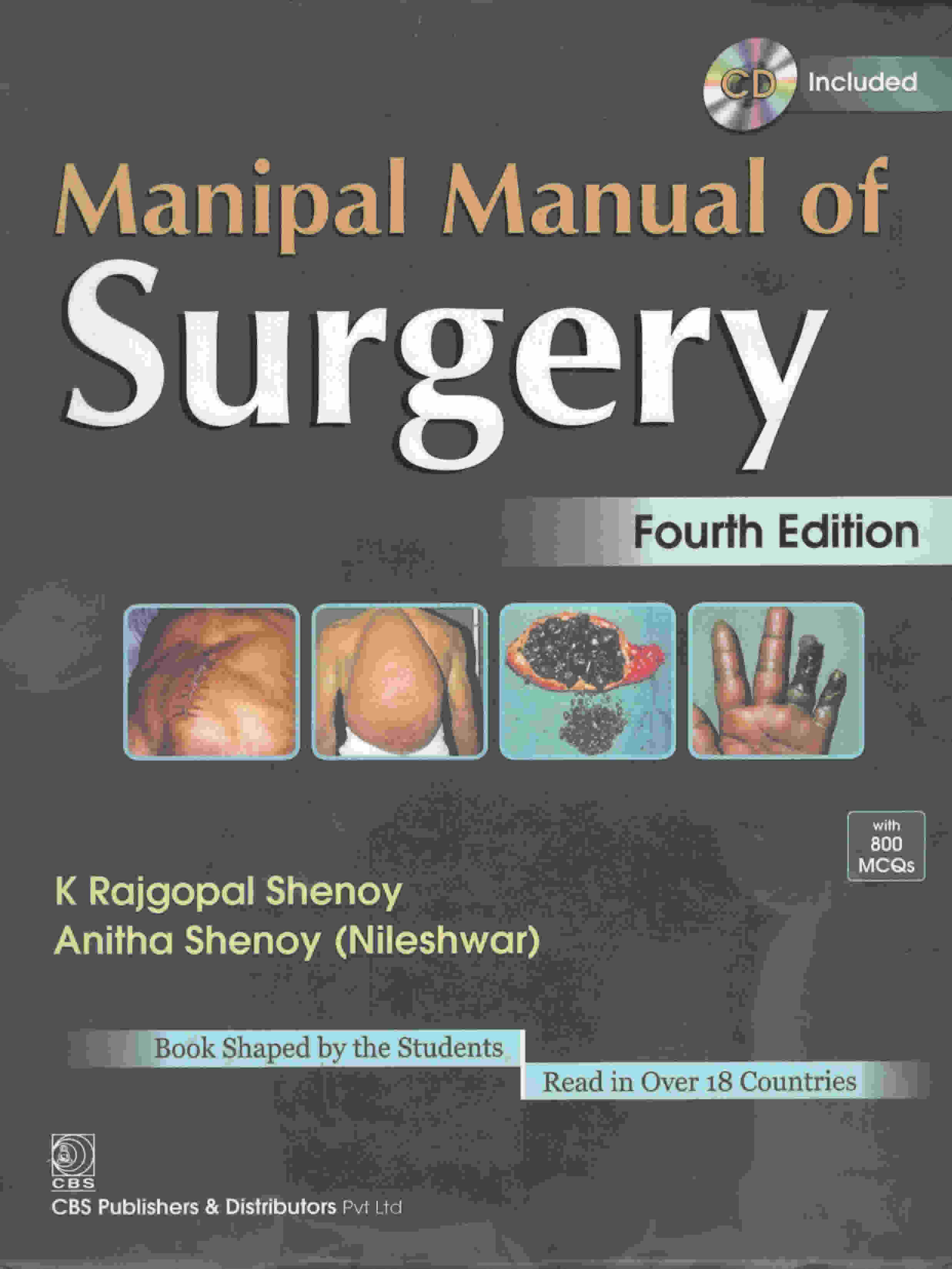 MANIPAL MANUAL F SURGERY- 4TH EDITION